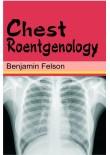 Chest Roentgenology, 1/Ed. (H.B.)